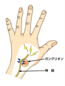 手のひら 親指 の 付け根 ふくらみ 痛い